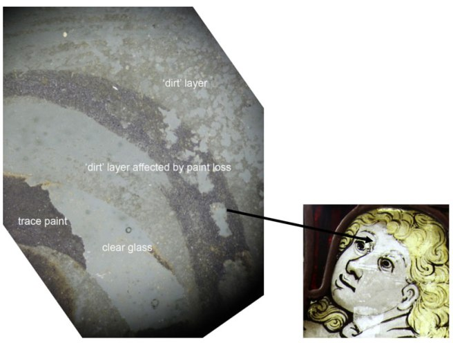 Detail - Microscopic image of the left eye of the angel